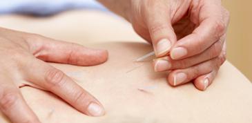治療に使う、鍼と灸