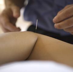 鍼灸保険治療